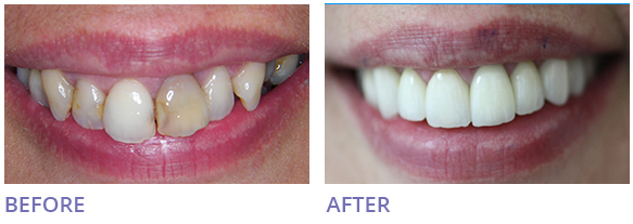 Home and Office Zoom Teeth Whitening Before After Image