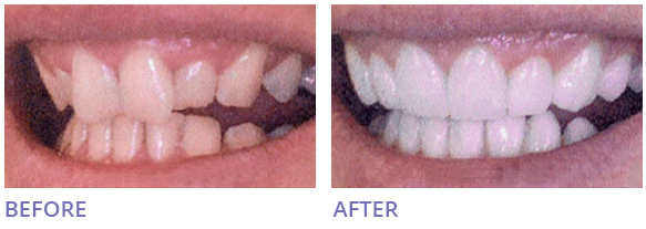 Home Zoom Teeth Whitening Before After Image