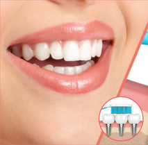 Cosmetic dentistry with dental implants