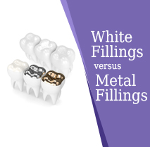 White versus Metal Fillings